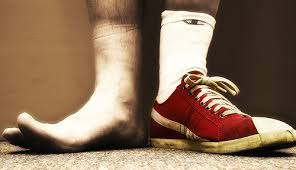 man-with-one-shoe